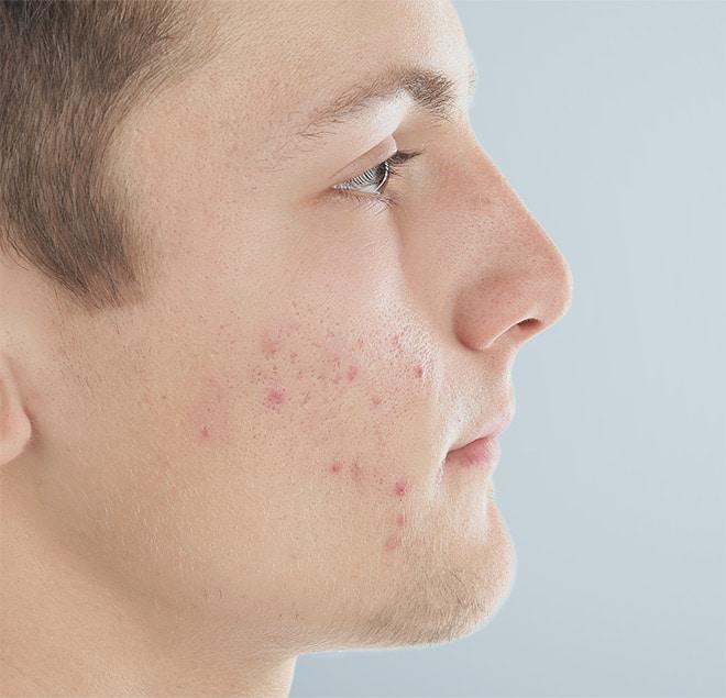 acne peau grasse