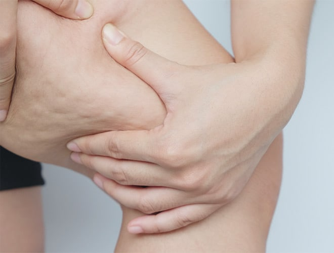 traitement-cellulite-besancon-emtone