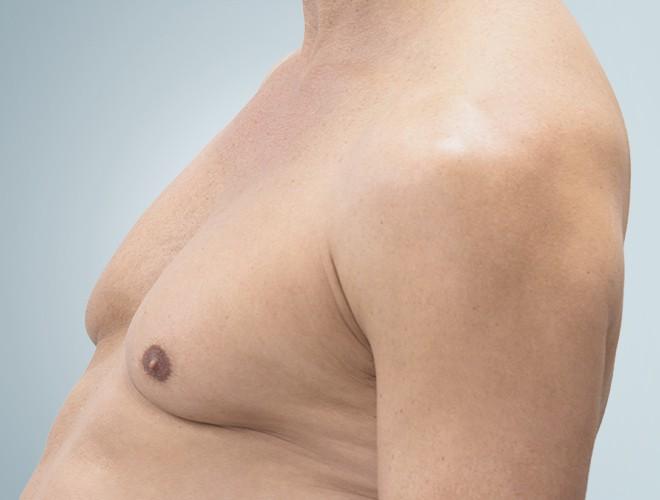 corps homme poitrine