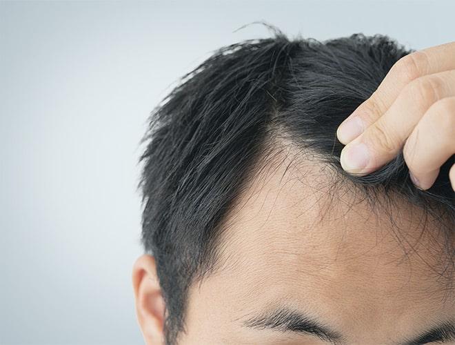 traitement alopecie chute de cheveux besancon