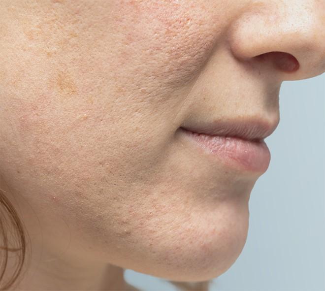 traitement-cicatrices-besancon-laser